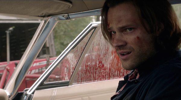 25 Supernatural SPN Season Eleven Episode Four S11E4 Baby Impala Jared Padalecki Sam Winchester Bloody